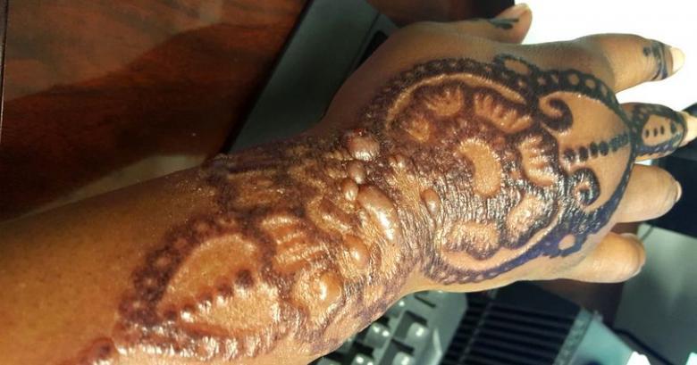 Аллергия на тату - причины возникновения аллергии на краску или пигмент для татуировки