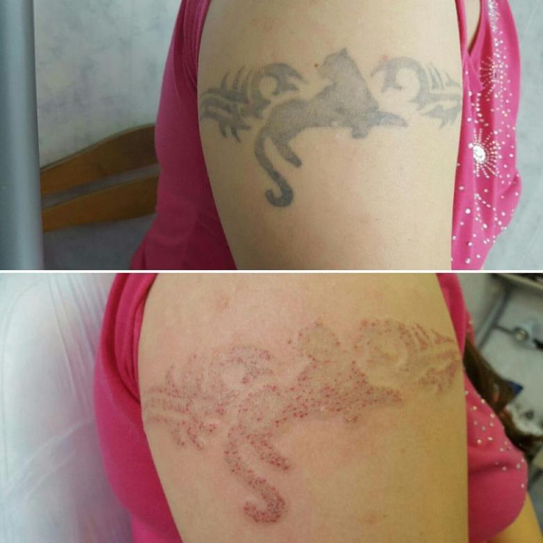 Как удалить татуировку лазером - как делается удаление, фото до и после