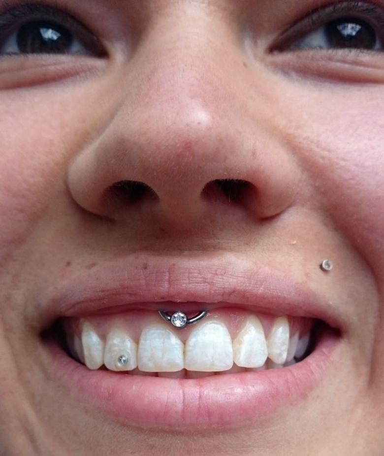 Пирсинг смайл - виды сережек, как выбрать украшение (59 фото)